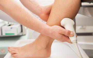 Ultraschall Beinvenen
